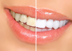 teeth whitening, professional teeth whitening,