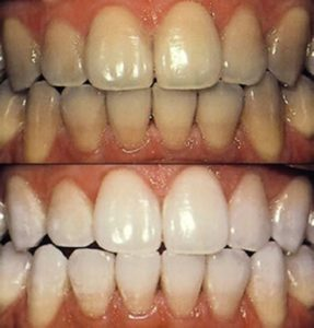Teeth Whitening,teeth whitening remedy,