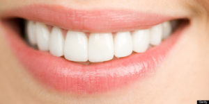 Bleaching Teeth Whitening, teeth whitening,