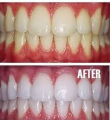 teeth whitening, teeth whitening tips,