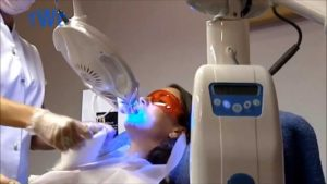 Teeth Whitening Procedure,Laser Bleach Teeth Whitening